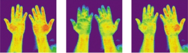 thermography denver