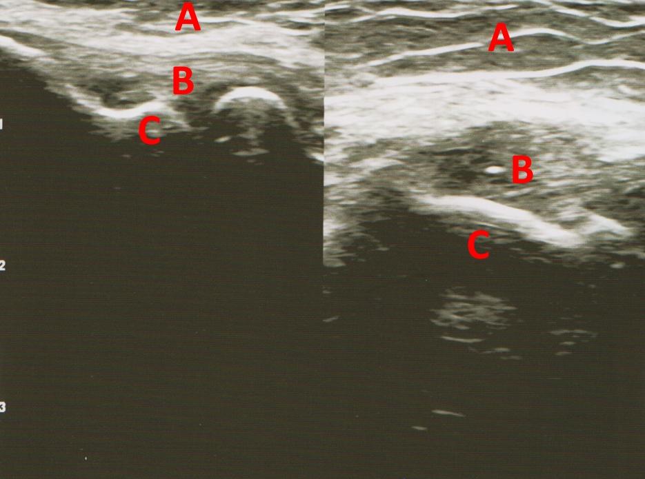 platelet rich plasma (PRP) elbow treatment